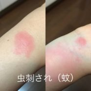 蚊刺過敏症