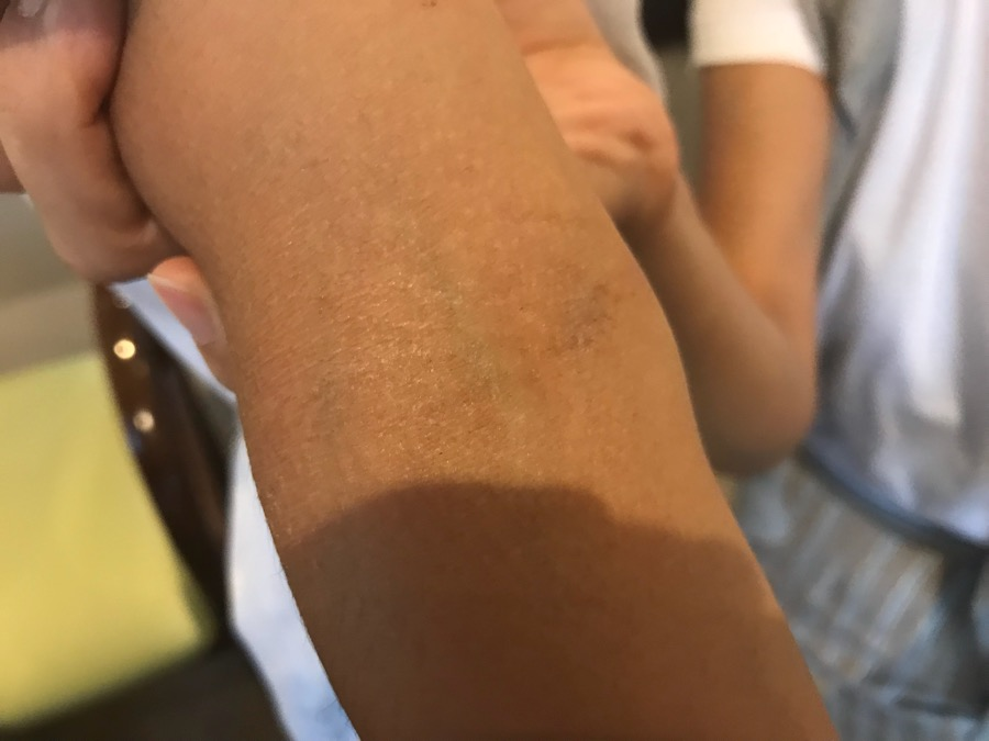 アトピー性皮膚炎 緩和期
