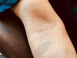 アトピー性皮膚炎 成人