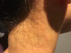 頚の湿疹 肌荒れ 痒み 赤み