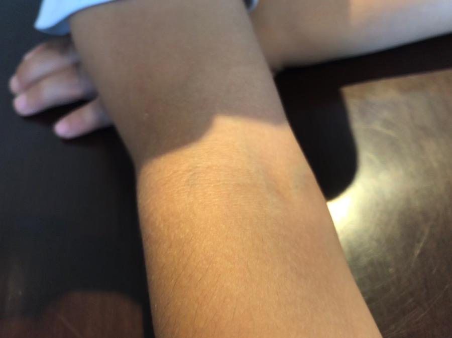 アトピー性皮膚炎 症状消失