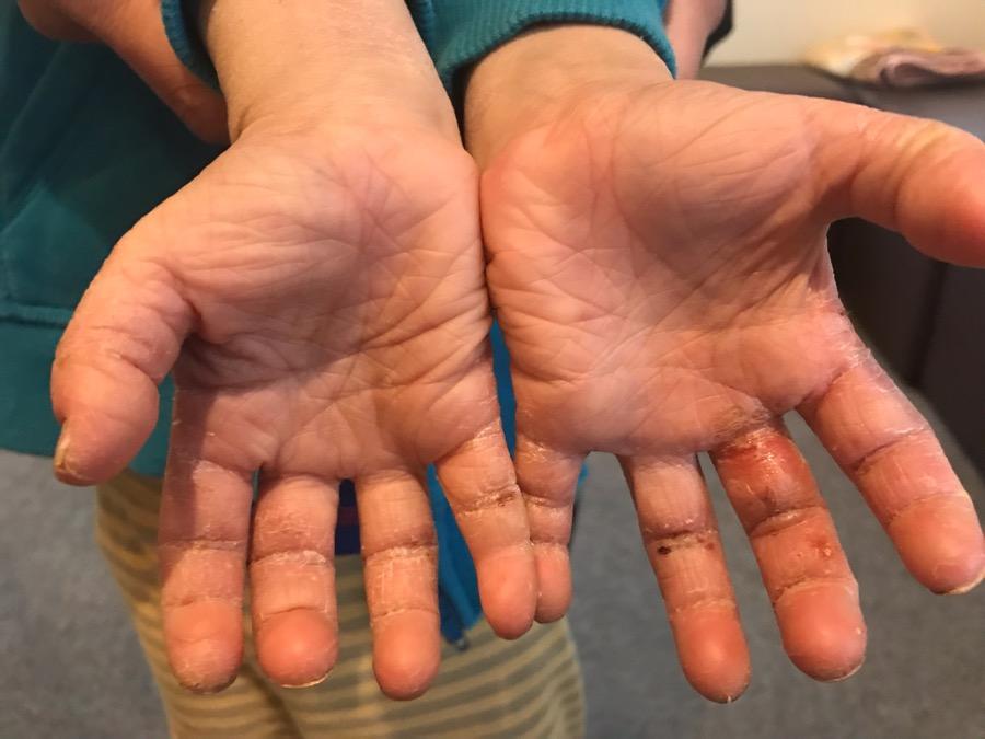 手掌部皮膚症状の治療5回め
