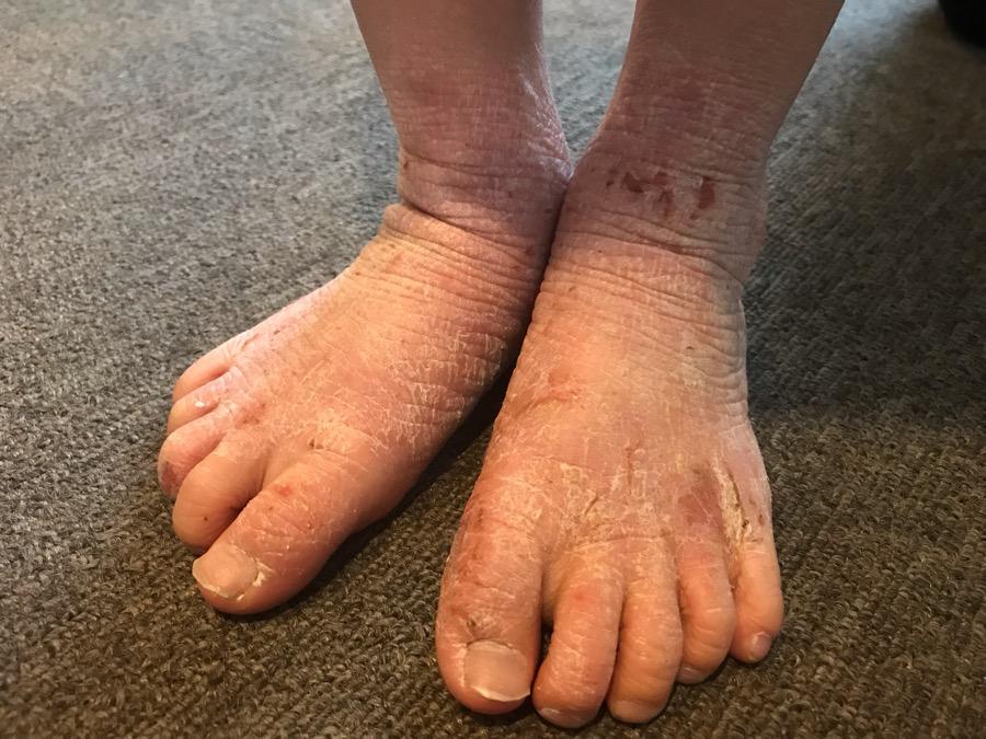 足部皮膚症状の治療5回め