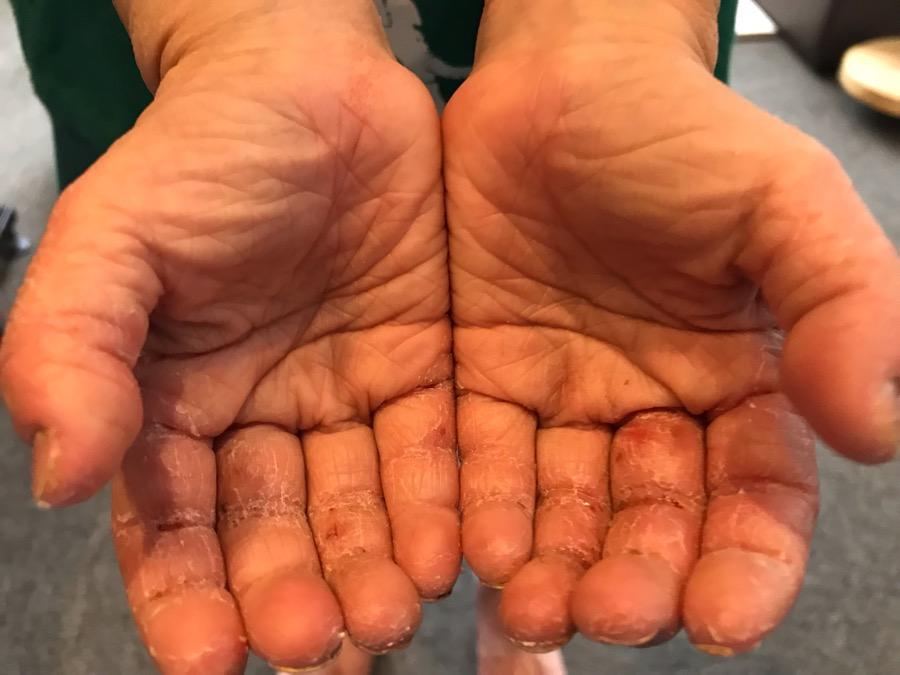 アトピー性皮膚炎、手掌