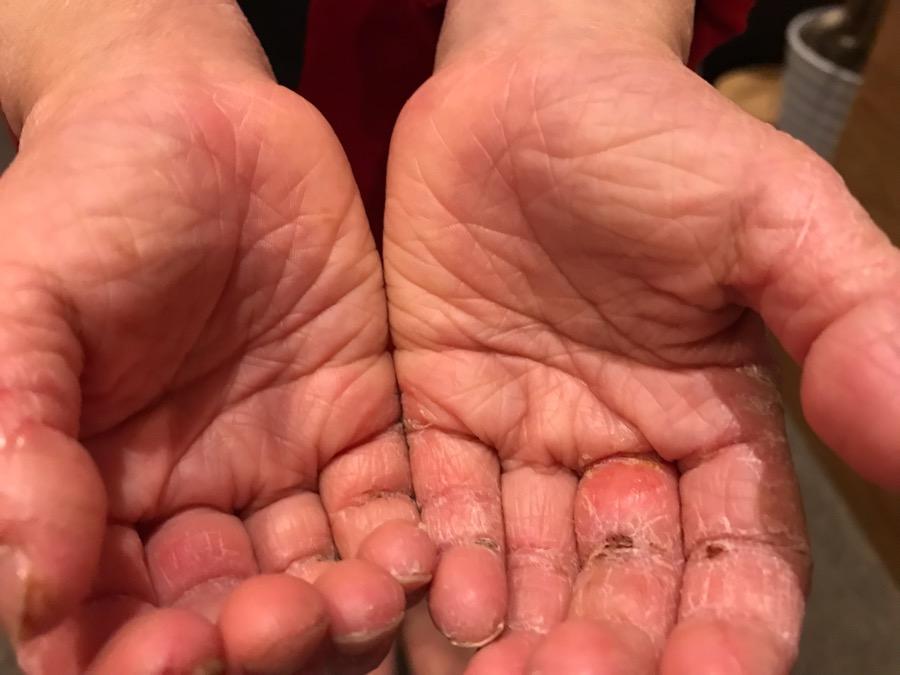 アトピー性皮膚炎施術4回め