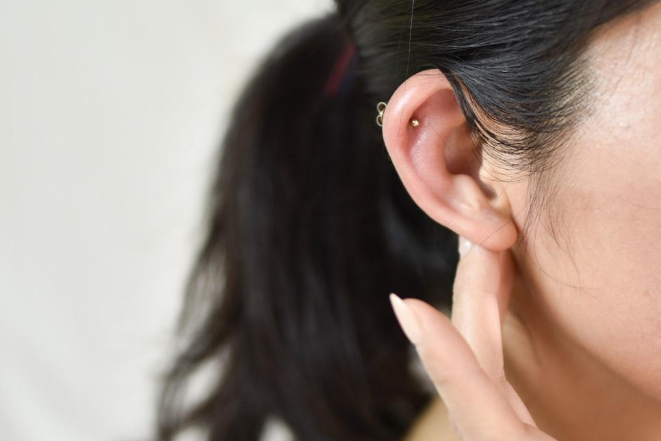 金属アレルギー耳たぶ